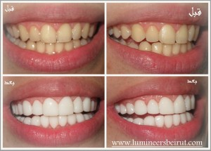 Hollywood smile, Lumineers, veneers,perfect smile, million dollars smile, dentist, dental clinic, dental implants, gummy smile, porcelain veneers, composite veneers, Laser dentistry, teeth whitening, laser bleaching, Beirut, Lebanon Call us now: +96171118111 Website: http://www.HollywoodsmilebeirutLebanon.com